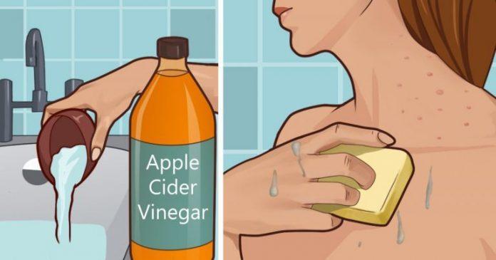 Pune otet de mere pe piele si vezi ce se intampla cu petele, acneea si alte probleme…