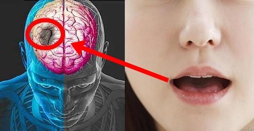 Semne nebănuite care anunță un atac cerebral major
