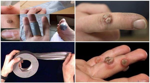 Remedii bizare care chiar vindecă