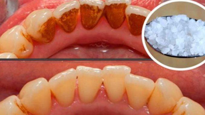 Un dentist s-a dat de gol și i-a spus pacientului cu ce trebuie să-și clătească gura pentru a scăpa de TARTRU! Iată secretul pe care dentiștii îl țin doar pentru ei…