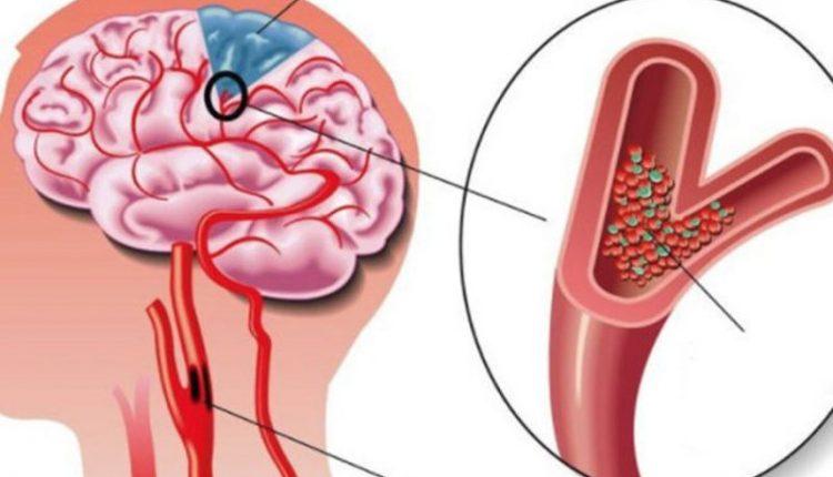 Semne de alarmă că ai un cheag de sânge care a ajuns la inimă sau la creier