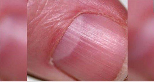Ai așa ceva la baza unghiei, pe degete? Se numește lunula și arată un indiciu prețios despre sănătatea ta Uite ce înseamnă dacă și a ta arată așa