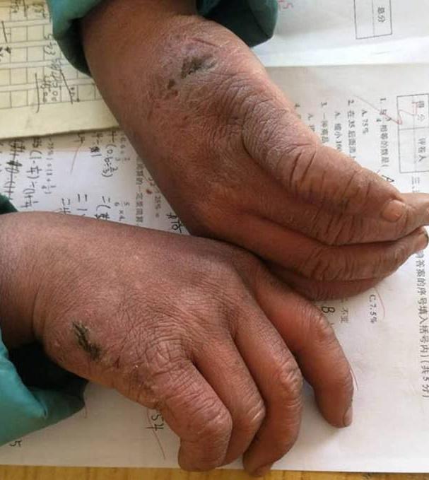 """Cine este pustiul care A IMPRESIONAT tot internetul?! Un profesor i-a fotografiat mainile degerate si crapate de frig: """"Ajunge, zi de zi, CONGELAT, la școală! Pe păr și sprâncene are gheață, mâinile-i sunt crăpate! 4,5 km la -9 grade! DAR VREA SĂ ÎNVEȚE!"""""""