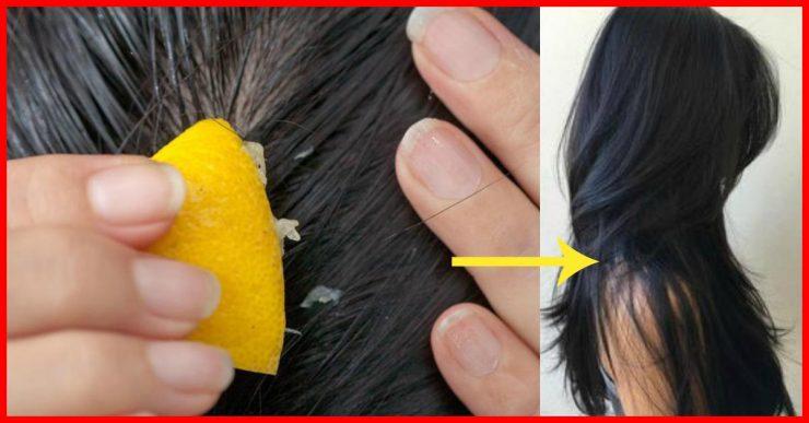 5 căi prin care îți poți regenera părul cu ajutorul lămâii – Lămâia favorizează creșterea părului!