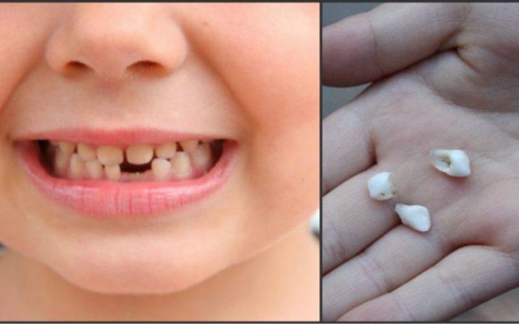 """Dinții de lapte căzuţi de la copii sunt """"comori de aur""""! Motivul pentru care să nu-i arunci!"""
