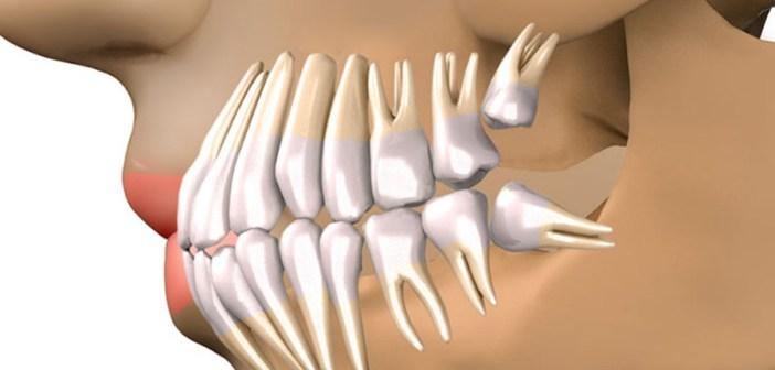 Adio implanturi dentare! Dinții care cresc în doar 9 săptămâni. Descoperirea despre care toată lumea vorbește. Tu ai auzit?